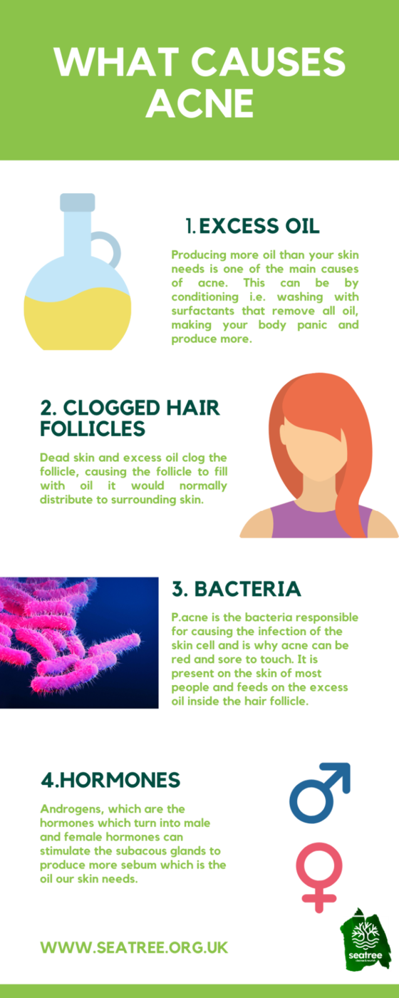 what causes acne infographic